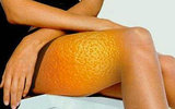 Борьба с «апельсиновой коркой» – все средства хороши!