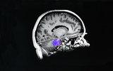 Инфекционные заболевания могут снижать уровень IQ