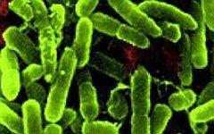Образцы бактерии Pseudomonas aeruginosa. Фото с сайта nasa.gov