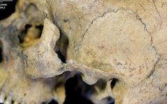 Один из черепов с заметной трещиной. Фото Heather Bonney с сайта nhm.ac.uk