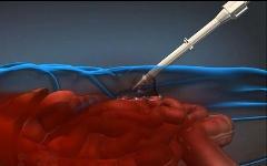 Инъекция пены. Фото с сайта darpa.mil