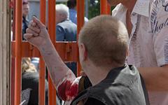 """Пострадавший во время взрыва © ИА """"Мост Днепр"""""""