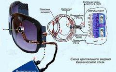 Бионический глаз. Фото ru.science.wikia.com