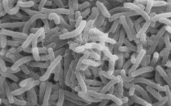 Вибрионы холеры под электронным микроскопом