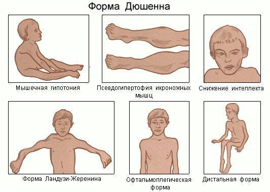 атрофии мышц фото