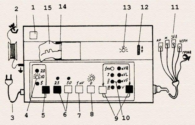 Устройство электрокардиографа