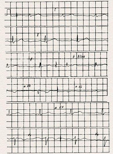 Нормальная электрокардиограмма схема описания реферат