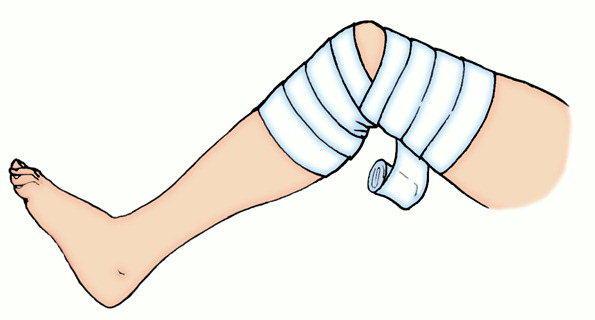 повязка при ушибе правого локтевого сустава