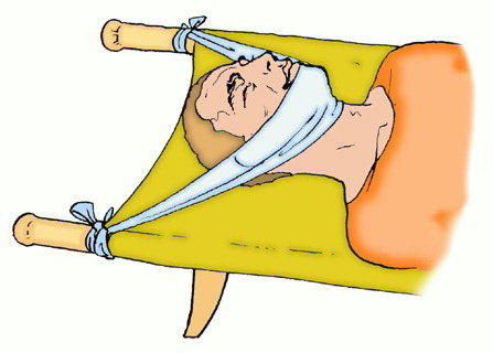 Зарядка при остеохондрозе и грыже диска