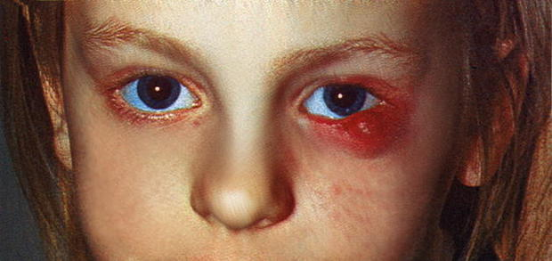 Кровянистые выделения через неделю после месячных. Тату на шраме от