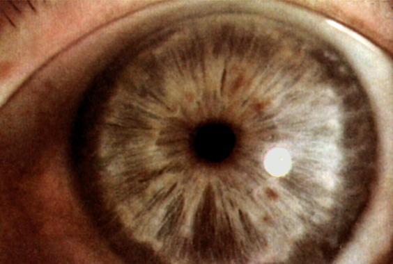 Смешанная глаукома