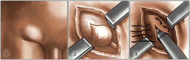 Паховая грыжа операция в донецке