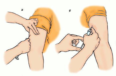 Как сделать укол в руку в мышцу