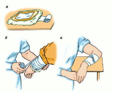 можно ли лечить суставы спиртовым компрессом